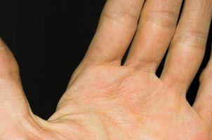 Nummenhet i venstre hånd