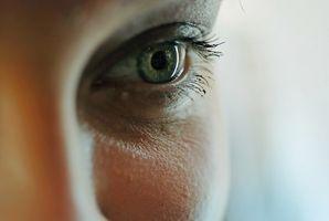 Mørke ringer under øynene av allergi