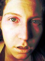 Gulsott Tester og diagnose