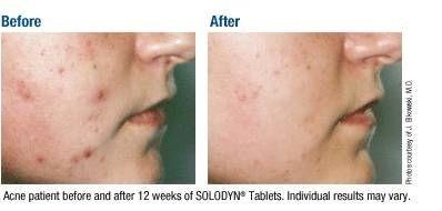 Om Oral Akne behandlinger