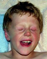 Ulike typer allergier