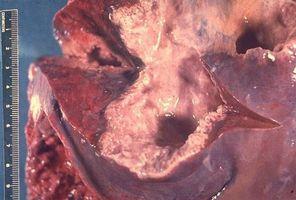 Hva er årsaken til et amebic Liver Abscess?