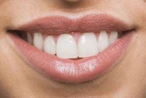 Typer av tannråte