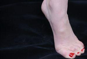 Hvilke betingelser Krev Foot Orthotics?