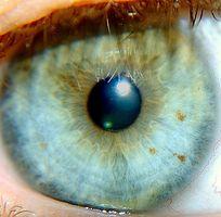Degenerative Schisis Eye Disease