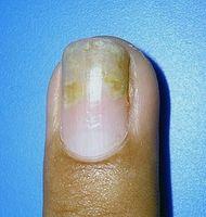Hvordan behandle Psoriasis av negler