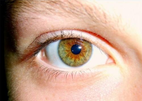 Beskrivelse av Cataract Surgery