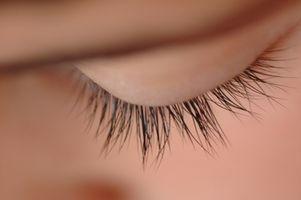Hvordan bli kvitt øyenvippe Midd