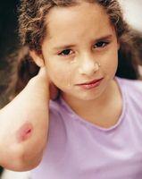 Hvordan Naturligvis bli kvitt Bruises
