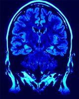 Hva er årsaken til en svulst på hypofysen?