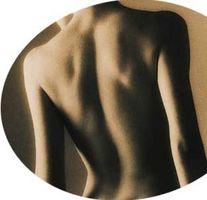 Hvordan bli kvitt akne arr på ryggen