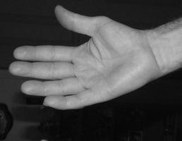 Behandling av akutt Carpal Tunnel Syndrome