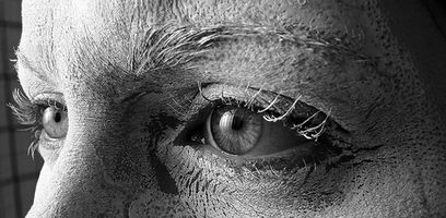 Atypiske Dry øyesymptomer