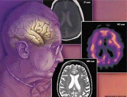 Alle former for demens og deres symptomer