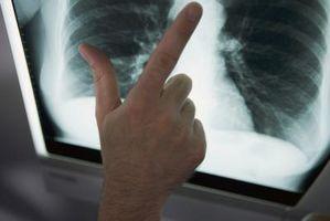 Parenkymatøs lungesykdom