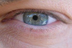 Kan du få en ripe i Eye Fra kontakter?