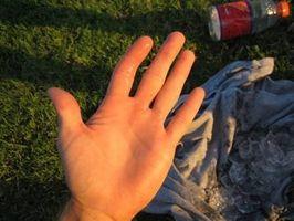 Hvordan virker en forstuet finger Heal?