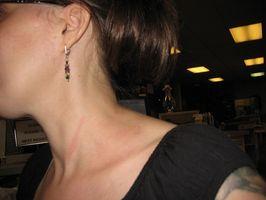 Tyreoidforstyrrelser Symptomer