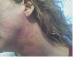 Hvordan finne hva som forårsaker kronisk idiopatisk urtikaria (Uforklarlig Hives)