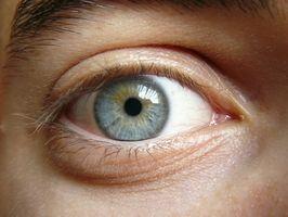 Hypotyreose og øye problemer