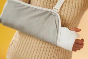 Hvordan Monter en Arm Sling