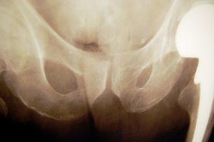 Årsaker til Hip smerter om natten