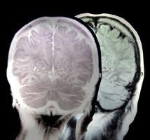 Hva er årsakene til Defekte blodårer i hjernen?
