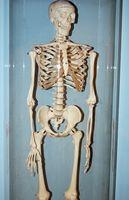 Tegn og symptomer på Bone Disease