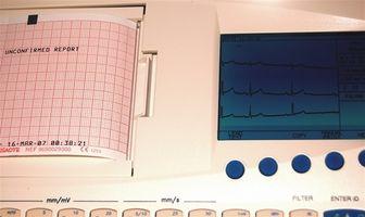 Hva er Broken Heart Syndrome?