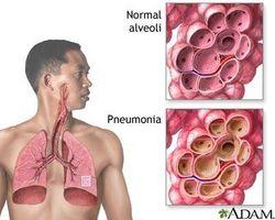Tegn og symptomer på lungebetennelse