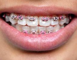 Hvordan er regulering på tennene tatt av?