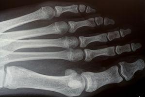 Radiologi for leddgikt