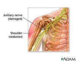 Skulder nerveskade Symptomer