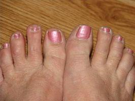 Hvordan kurere spiker sopp & Still bruke sandaler