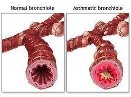Hvordan redusere risikoen for astma