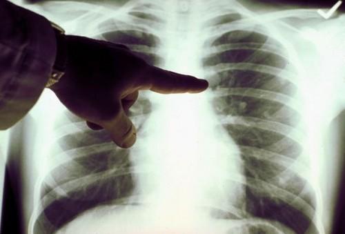 Hvordan Spot Fluid på Lung Symptomer