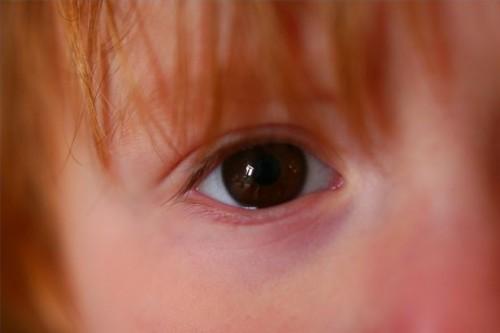 Overdreven Blinker hos barn