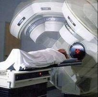 Hvordan virker Stråleterapi hjelpe til med behandling av kreft?