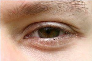 Oppskrapte øyesymptomer