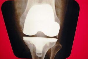 Tegn og symptomer på en overstrukket Knee