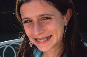 Slik fjerner Brak Fra Ortodontisk Bukseseler