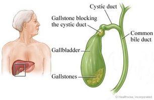 væske i buken kreftceller