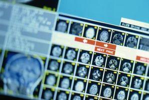 Søknader om behandling av nevrologiske lidelser