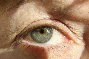 Hvordan til å behandle multippel sklerose synstap