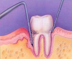 Velge en elektrisk tannbørste for tannkjøtt sykdom