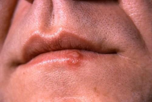 Typer av Herpes Virus