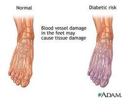 Grunner for dårlig sirkulasjon i føttene