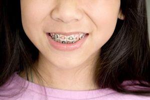 Hvordan få gratis tannregulering i Los Angeles