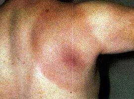 Liste over alle symptomer på Lyme sykdom