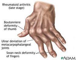 autoimmune sykdommer symptomer